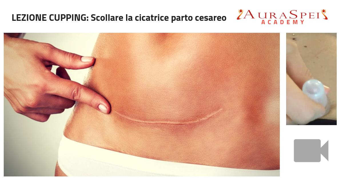 Scollare cicatrice taglio cesareo